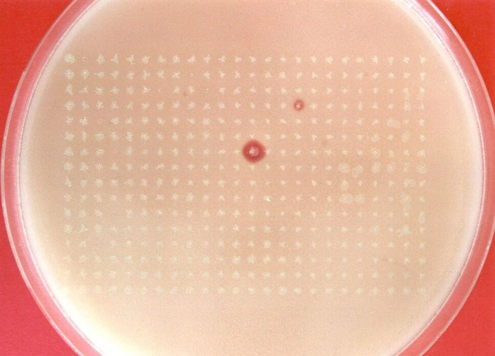 BRAIN AG: Screening nach Proteasen zur Waschmittelanwendung